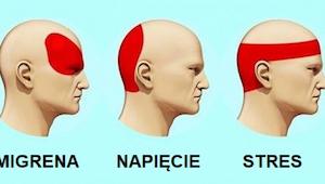 Badania dowiodły, że ta metoda na ból głowy jest skuteczniejsza niż leki, a dzia