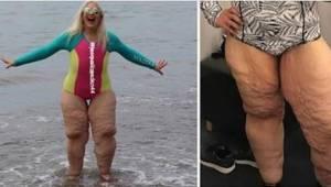 Jej prześladowcy kpili z jej nóg - wtedy opublikowała zdjęcie zrobione z bliska