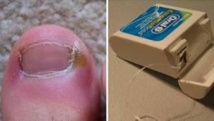 Wrastający paznokieć? Nie ma potrzeby iść do lekarza. Poznajcie 6 domowych metod