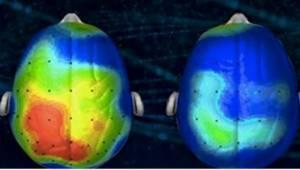 Neurolodzy stworzyli piosenkę, która redukuje niepokój. Już ją słyszeliście?