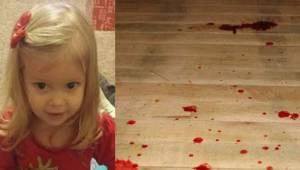 Dwulatka zrobiła się sina i zaczęła wymiotować krwią. Niedługo potem zmarła. Moż