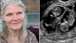 41-latka spodziewała się trojaczków, ale kiedy w czasie porodu lekarz odkrył coś