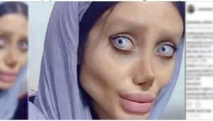 Chce wyglądać identycznie jak Angelina Jolie - zobaczcie efekty...