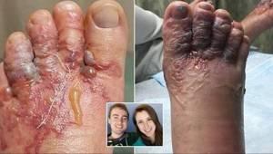 To, co się stało z ich stopami po tym, jak chodzili boso po plaży, jest straszne
