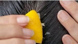 Wystarczy prosta i tania kuracja w domu,  by włosy przestały wypadać. Spróbuj ju