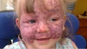 Gdy lekarz zobaczył ją, myślał, że ma na twarzy nietypowe siniaki, ale to było c