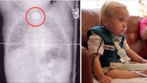 Gdy ich synek zaczął wymiotować krwią, nie spodziewali się, że doszło do tego z