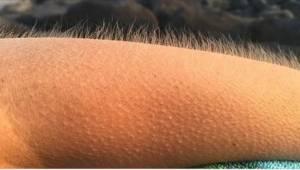 Dlaczego niektórzy mają gęsią skórkę podczas słuchania muzyki? Poznaj odpowiedź.