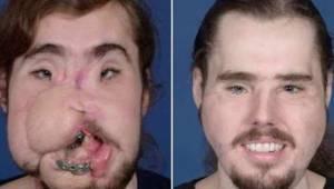 Mężczyzna miał całkowicie zniekształconą twarz po próbie samobójczej. Teraz niez