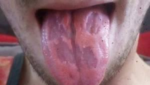 Nauczyciel zamieścił pilne ostrzeżenie po tym jak jego język został zniszczony p