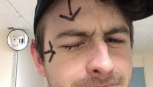 Mężczyzna stracił wzrok w jednym oku po tym jak wziął prysznic z założonymi socz